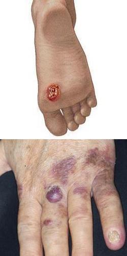 Злокачественная опухоль мягких тканей в области локтевого сустава болит мышца в локтевом суставе лечение