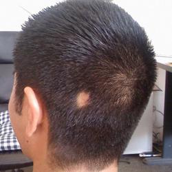 Касторовое масло и витамин а и е для волос пропорции