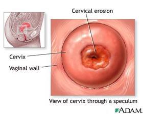 Эрозия шейки матки Симптомы Лечение Профилактика