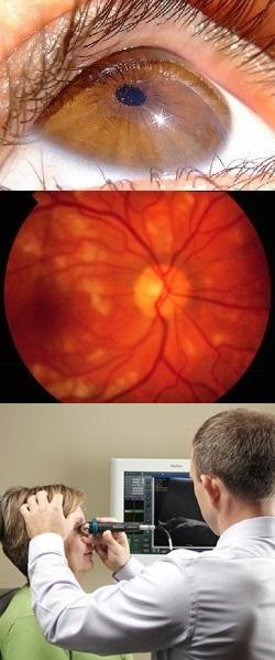 Почему возникает сужение сосудов глазного дна и как его лечить. Ангиоспазм сосудов сетчатки глаза