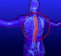 Остеохондроз грудного отдела между лопатками