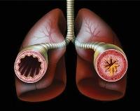 Дипроспан уколы при ревматоидном артрите отзывы