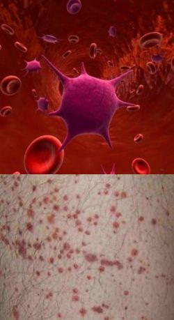 Идиопатическая тромбоцитопеническая пурпура (болезнь Верльгофа)