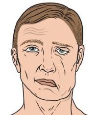 Болезнь Лайма (Клещевой боррелиоз, Лаймборрелиоз)