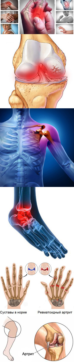 Профилактика ревматоидного артрита - Likar.Info