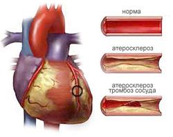 Атеросклероз венечных артерий сердца