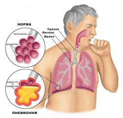 симптомы респираторного хламидиоза