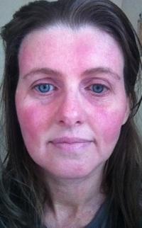 аллергия как ожоги на теле