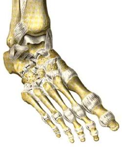 Артроз стопы - деформирующий артроз суставов стопы, лечение, народные средства, в домашних условиях, гимнастика, фото