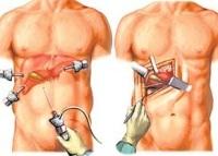 Лапароскопия желчного пузыря. Диагностическая лапароскопия желчного, удаление желчного пузыря методом лапароскопии. Показания, противопоказания, преимущества метода и реабилитация