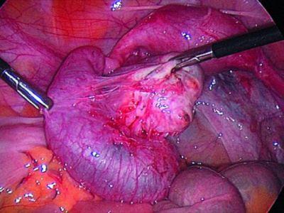 Лапароскопическое удаление кисты яичника особенности операции