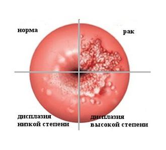 Беременность и дисплазия шейки матки 2 степени