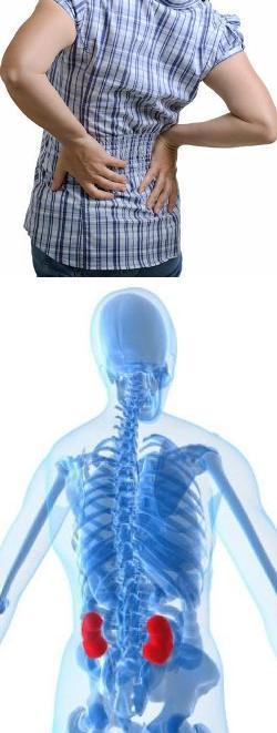 MEDICINA GENERALA Kidneyspain-f6y