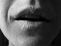 Обезвоживание - причины, признаки, симптомы, лечение