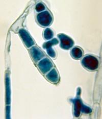 Инфекционная локализация грибка под ногтем