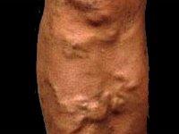 Боль в голени - основные причины.