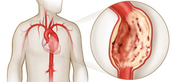 Симптомы, профилактика и лечение аневризмы брюшной аорты