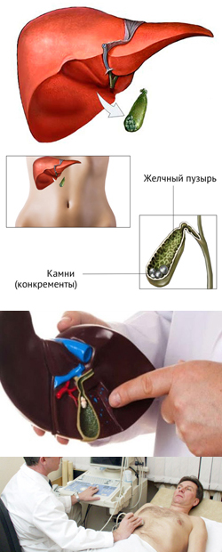 Желчекаменная болезнь: лечение без операции и диета