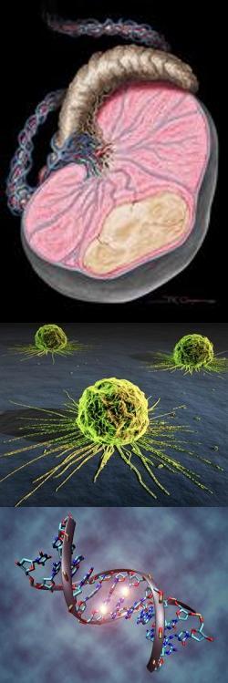 Симптомы и лечение рака яичка