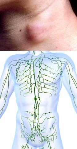 От чего воспаляются лимфа узлы