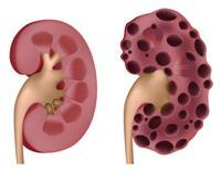 Боли в почках  Kidneyspain-s2e