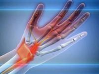 Туннельная невропатия локтевого нерва - Всё о неврологии