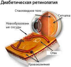 http://www.tiensmed.ru/news/uimg/16/retinopatiea-1.jpg