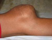 Рак коленного сустава