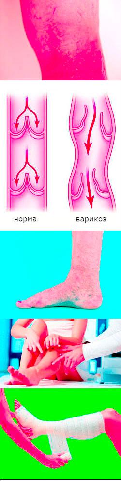 От чего возникает варикоз на сайте варикоз-излечим.рф