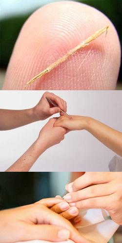 Как вытащить занозу из под ногтя