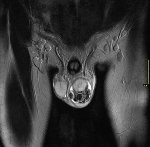 Варикоцеле (варикоз вен яичка) – причины, степени, симптомы и ...