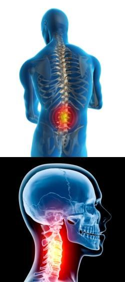 Положение тела во время сна при шейном остеохондрозе