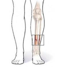 Болит нога ниже колена спереди