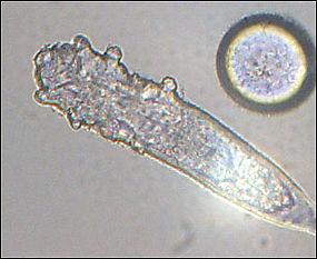 подкожные паразиты у человека фото