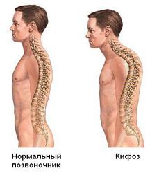Кифоз позвоночника: что это такое, степени, симптомы и исправление