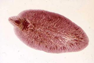 Меры профилактики заболеваний вызванных гельминтами