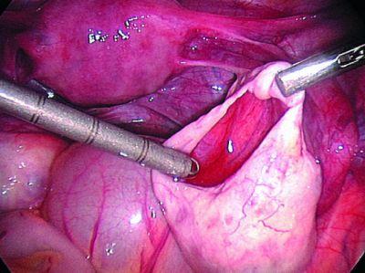 Беременность после кисты яичника отзывы