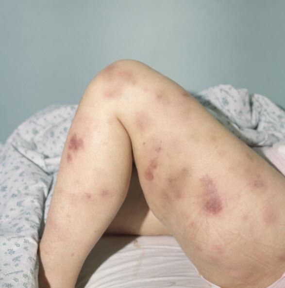 Миеломная болезнь – что это простыми словами, множественная миелома – симптомы, диагностика