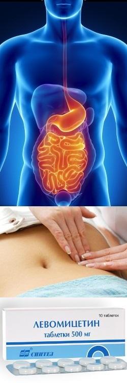Стоматитострый гастрит острый гастроэнтерит лечение профилактика у детей реферат
