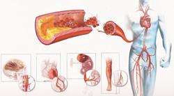 Диетотерапия лечения атеросклероза