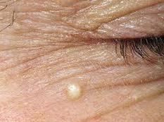Атерома на груди у женщин симптомы и лечение