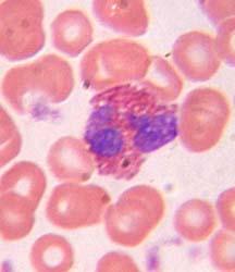 Клинический анализ мокроты - Гемотест