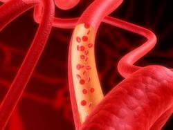 Клиническая картина атеросклероза