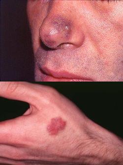 Саркома капоши симптомы 1