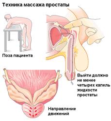 Простата массирование для секса