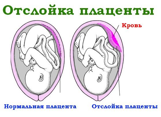 Как развивать ребенка во время беременности