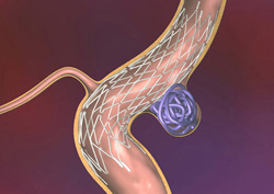 Можно ли жить с аневризмой головного мозга без операции -