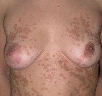 Воспаление соска  причины симптомы диагностика лечение