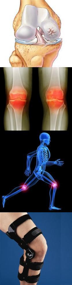 Артроз коленного сустава Народные средства