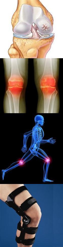 Питание и диета при гонартрозе коленного сустава степени гонартроза